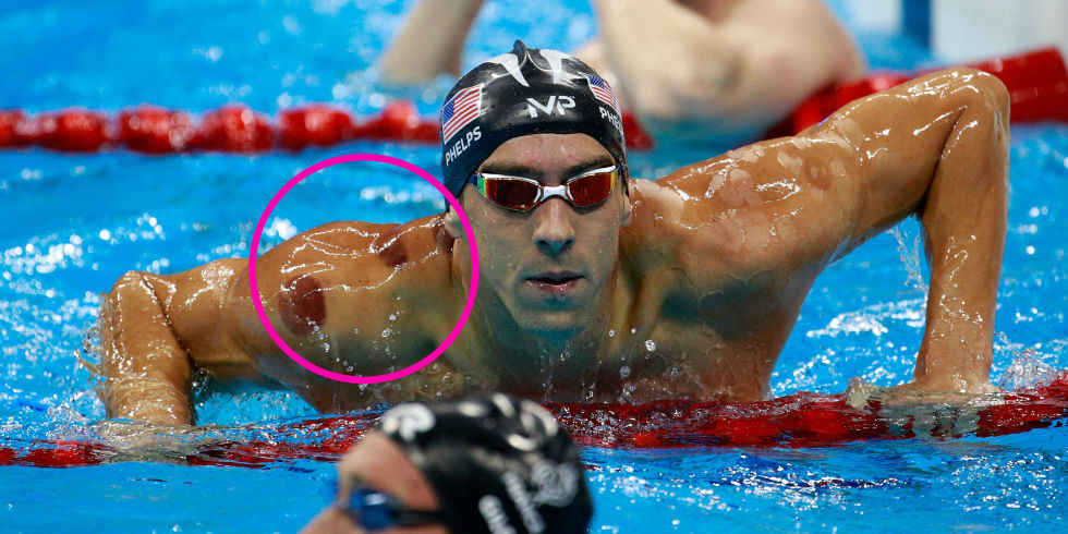 At the 2016 Summer Olympics, Michael Phelps has generated a lot of buzz, and not just because of his medals! People are asking what the circular marks on his shoulders and back are and, for many, learning about cupping for the first time.